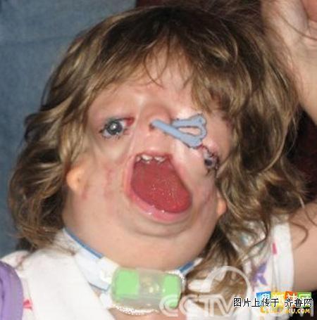 号称:世界上最丑的女孩